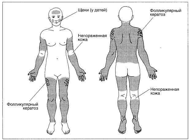 распространенность кератоза