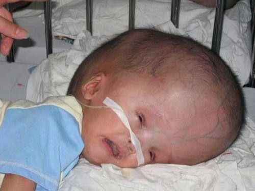 у ребенка гидроцефалия
