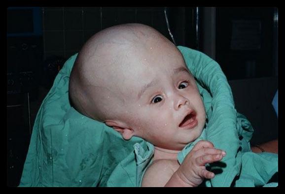 маленький ребенок с гидроцефалией