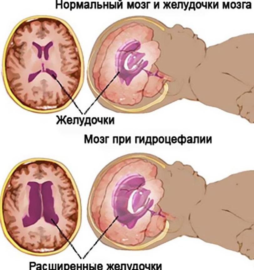 схема водянки головного мозга