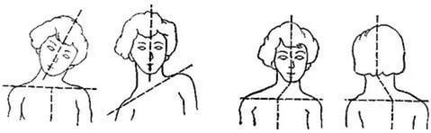 схема диагностики кривошеи