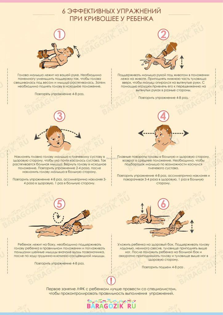 схема массажа при кривошеи