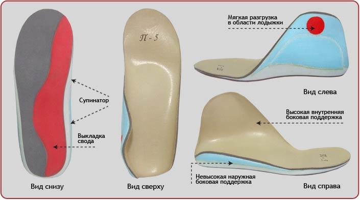 обувь при вальгусной деформации