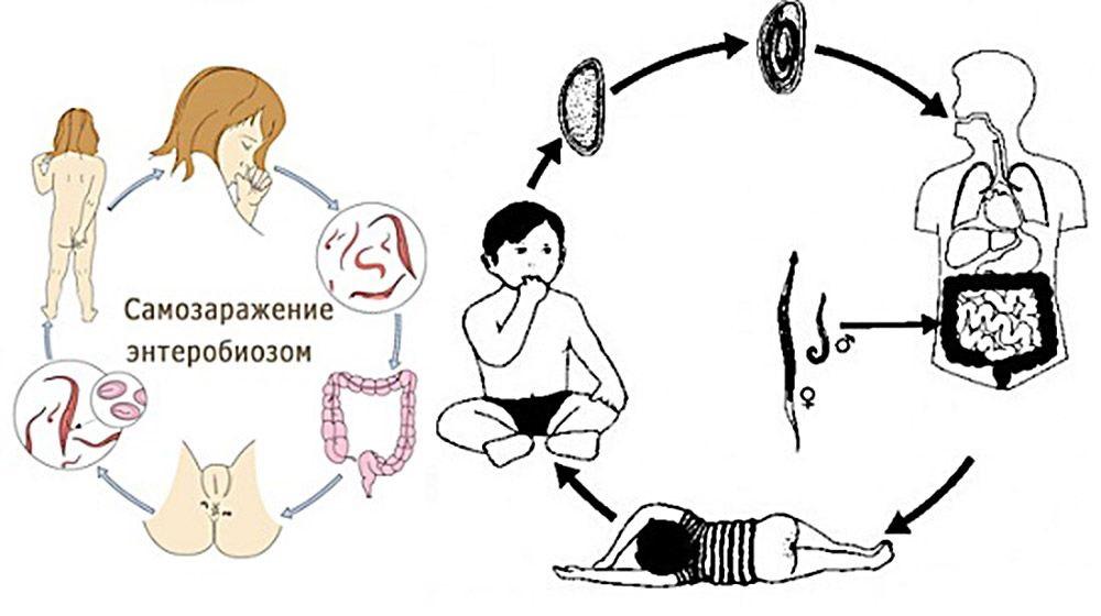 схема самозаражения ребенка
