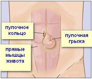 схема пупочной грыжи