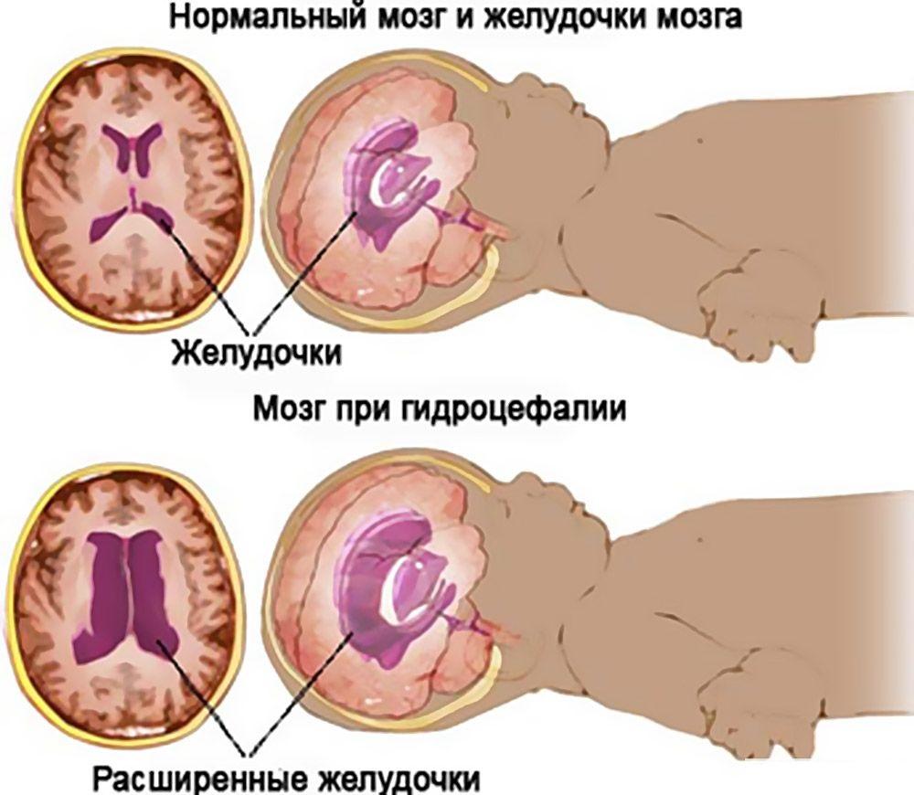 нормальный мозг и при гидроцефалии