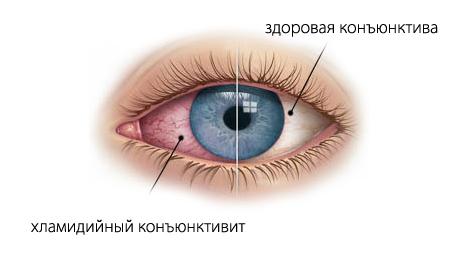 воспаление глаза при хламидиозе