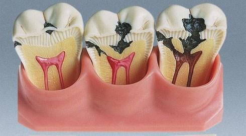 зубы, пораженные кариесом и пульпитом