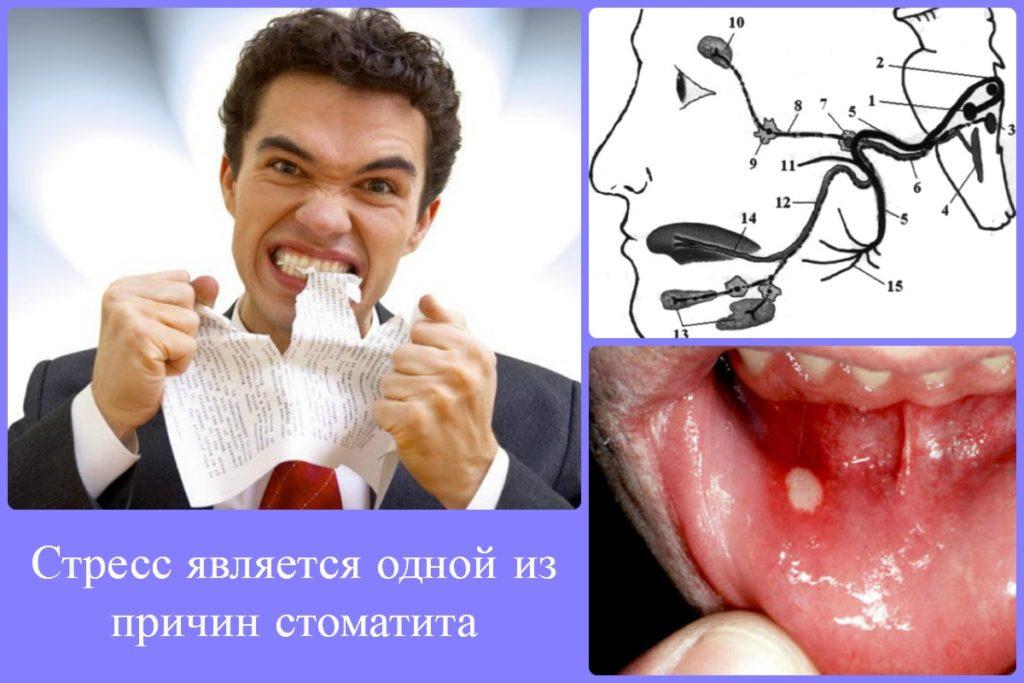 стресс как причина стоматита