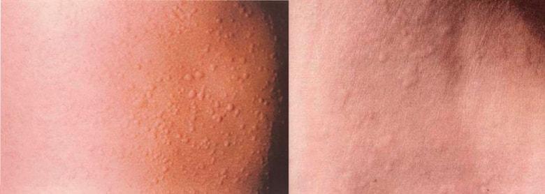 сыпь на коже