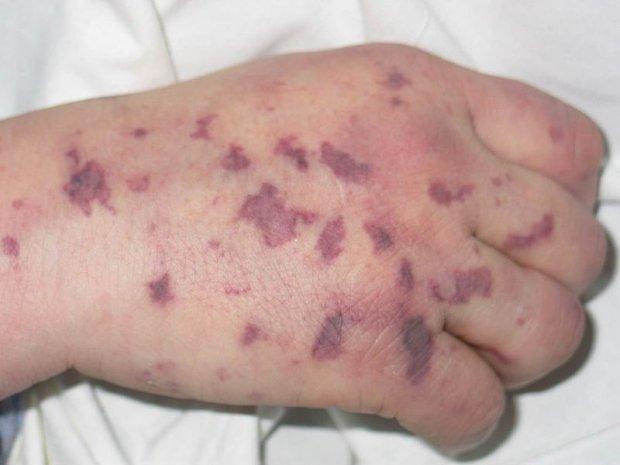 сыпь на руке при менингококковой инфекции