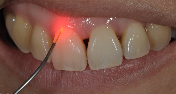 зуб лечат лазером
