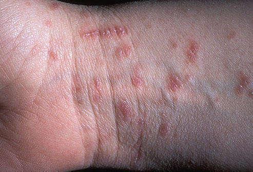 чесоточная сыпь на руке