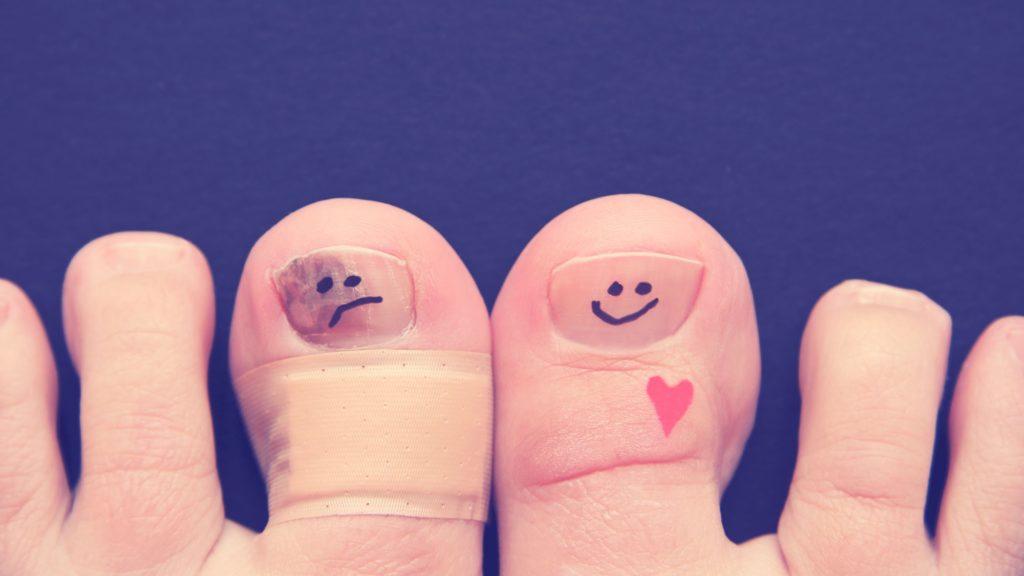 пальцы на ногах с улыбкой и без