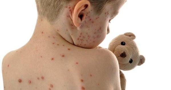 сыпь на коже у ребенка