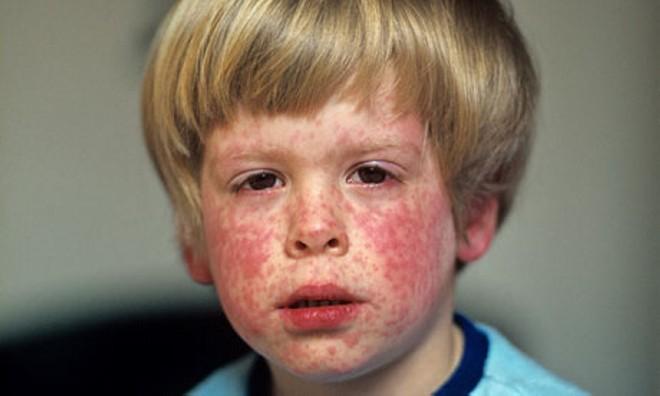 признаки кори на лице мальчика