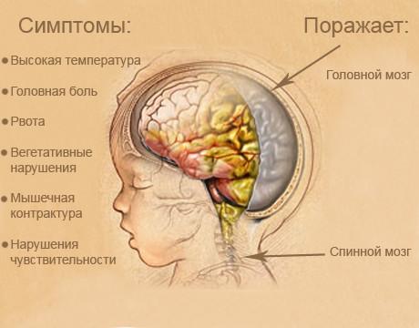 симптомы туберкулезного менингита