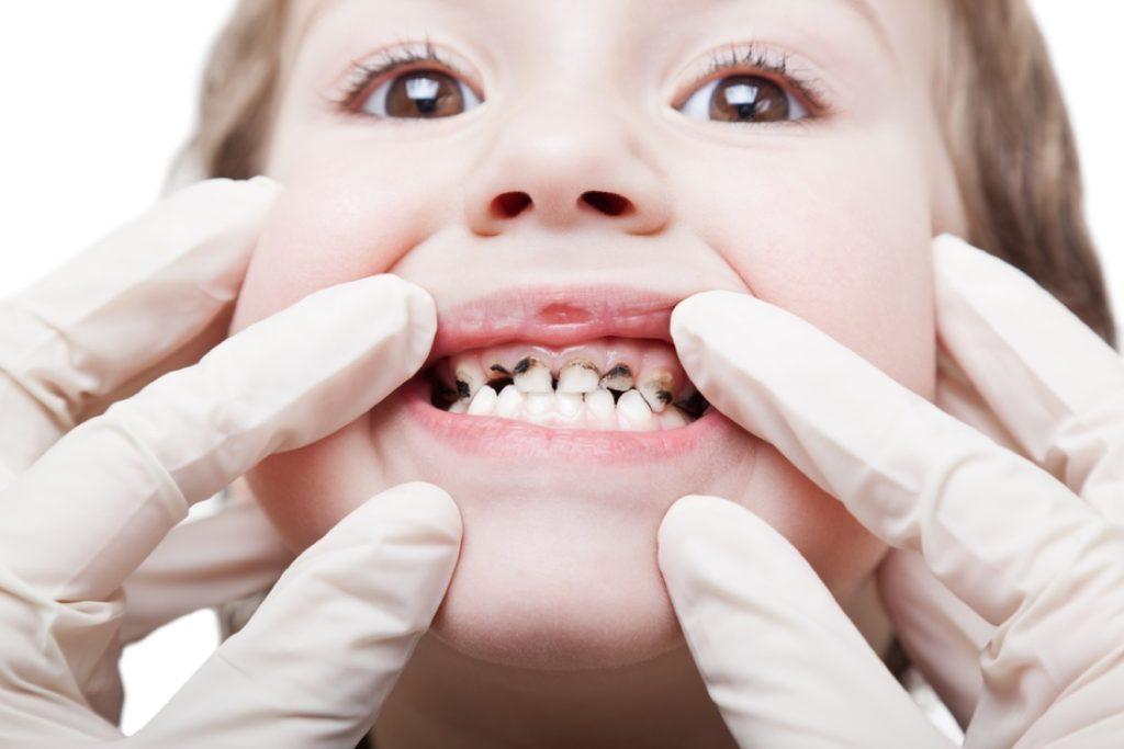 Кариес на всех зубах у ребенка