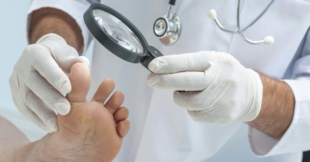 ногу с грибковым поражением рассматривают в лупу