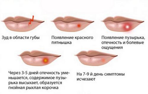 схема высыпания герпеса на губах