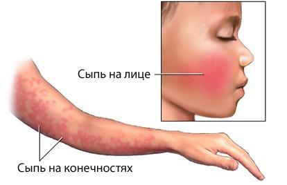 признаки инфекционной эритемы