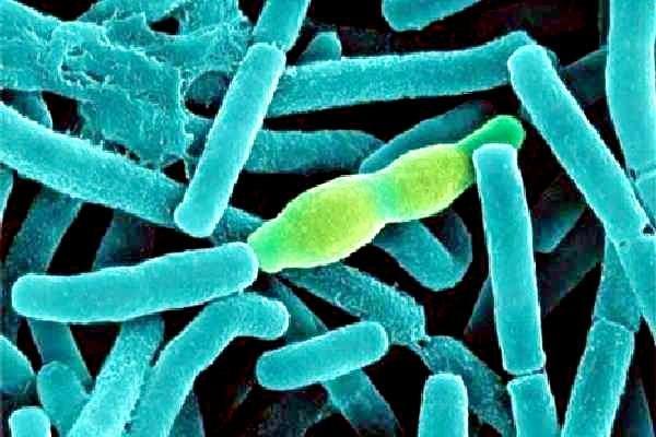 вирус паракоклюша под микроскопом