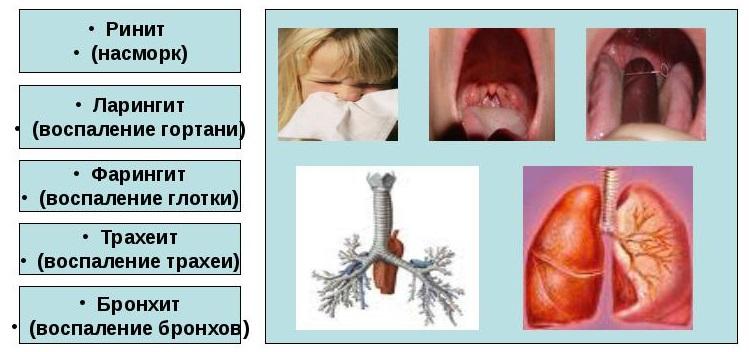 таблица сопутствующих заболеваний