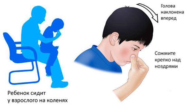носовые кровотечения у детей - как остановить