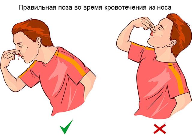 как правильно останавливать носовое кровотечение