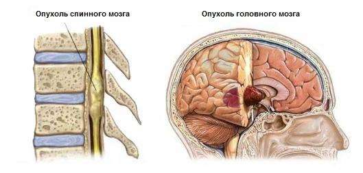 локализация опухолей