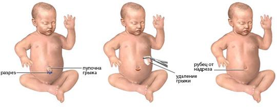 пупочная грыжа у новорожденных - методика лечения