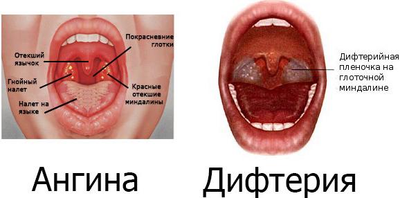 отличие ангины от дифтерии