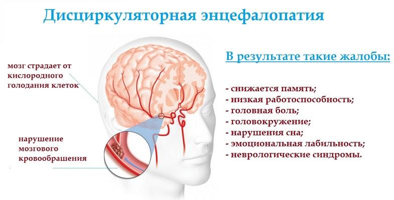 описание дисциркуляторной энцефалопатии