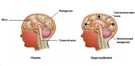 здоровый мозг и пораженный гидроцефалией