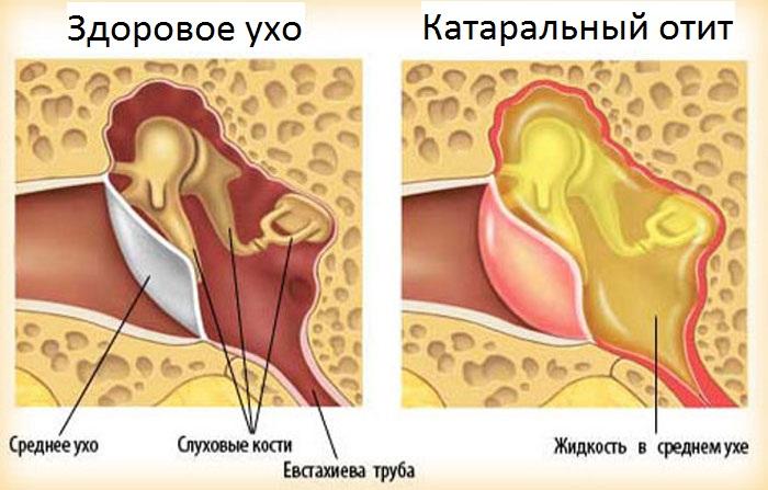 схема здорового уха и отит катаральный