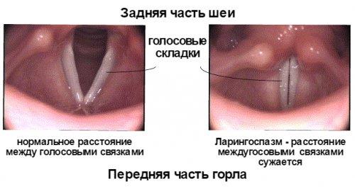 ларингоспазм у детей - фото патологии