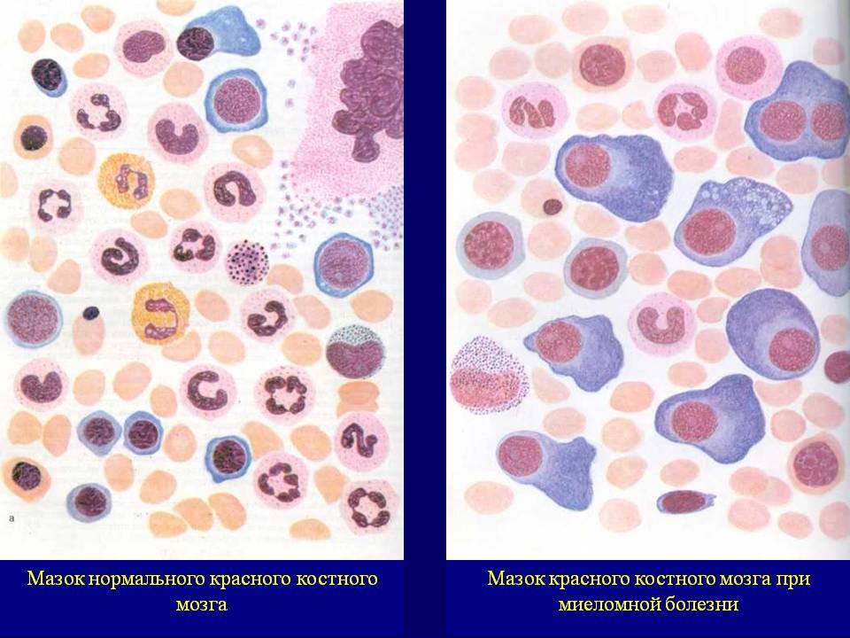 кровь в норме и при лейкозе