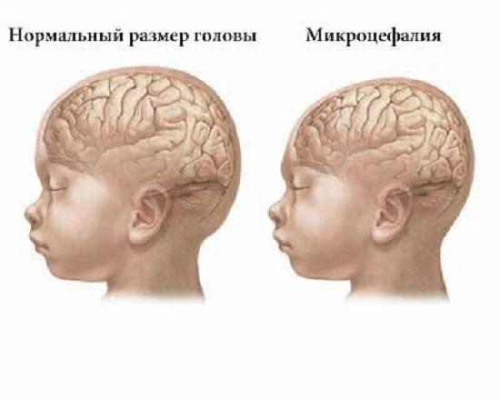 пример головы нормального размера и с микроцефалией