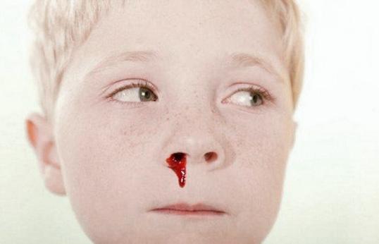 у мальчика из носа течет кровь