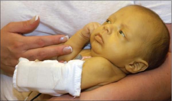 маленький ребенок с желтухой