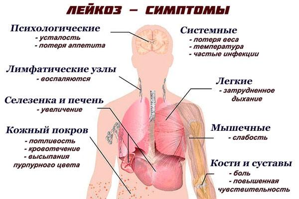 признаки лейкоза