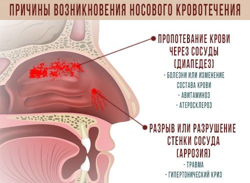 схема возникновения кровотечений из носа