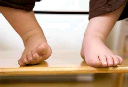 искривленные рахитом ножки ребенка