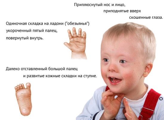 признаки даунизма