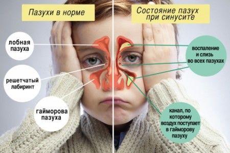 схема: номальные пазухи носа и при синусите