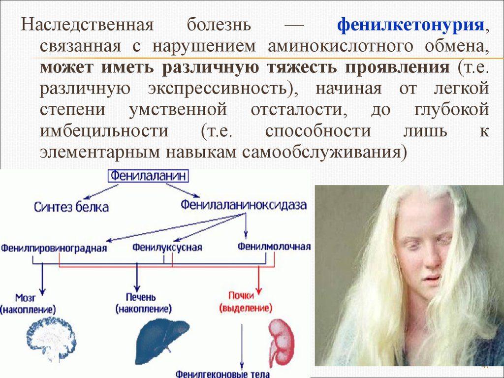 описание болезни фенилкетонурия