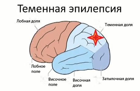 схема развития теменной эпилепсии