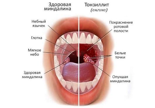 здоровая миндалина и пораженная тонзиллитом