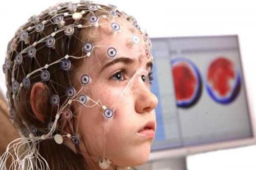 Резидуальная энцефалопатия головного мозга что это такое