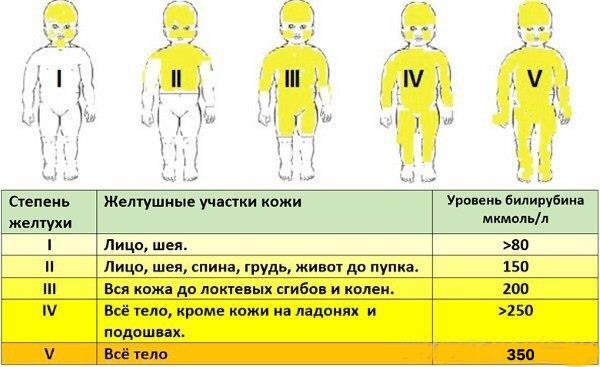 желтуха у детей - таблица степеней